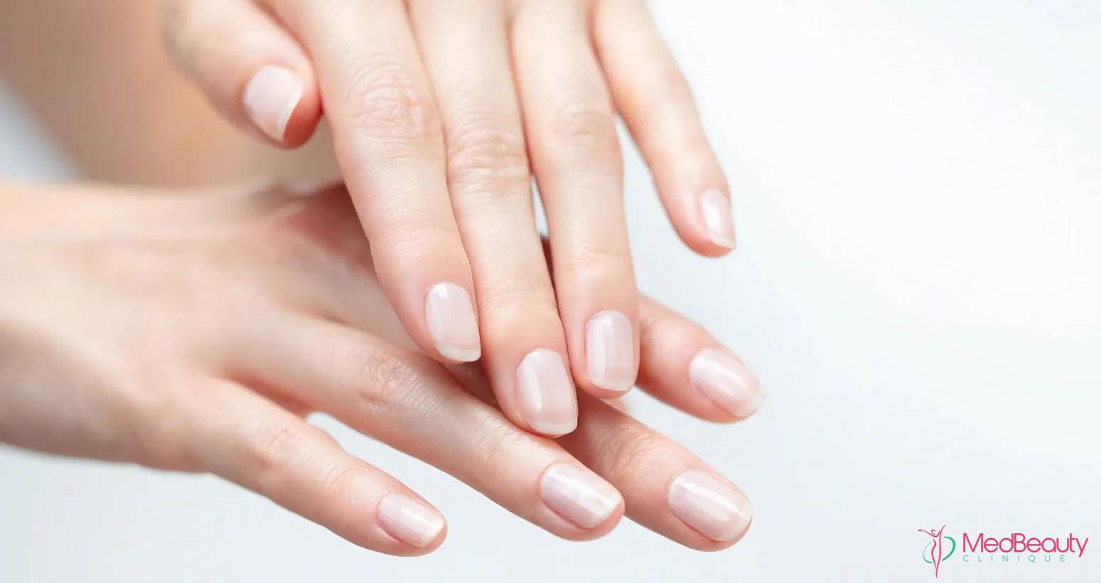 pielea mainilor