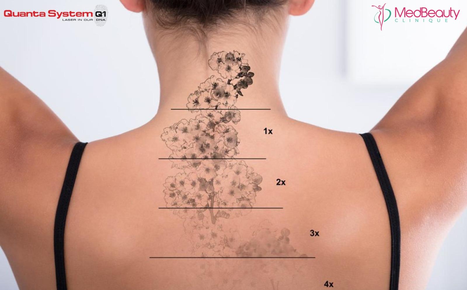 Indepartare tatuaj cu laser